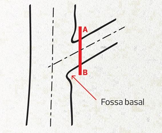 poda_corte_fossa_basal